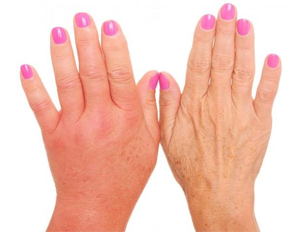 Image result for follow-these-easy-ways-swelling-hands-in-winter