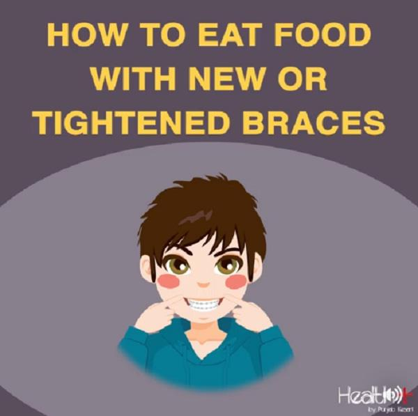how to eat food with new or tightened braces