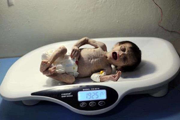 this is the price of war a malnourished syrian baby who died of hunger