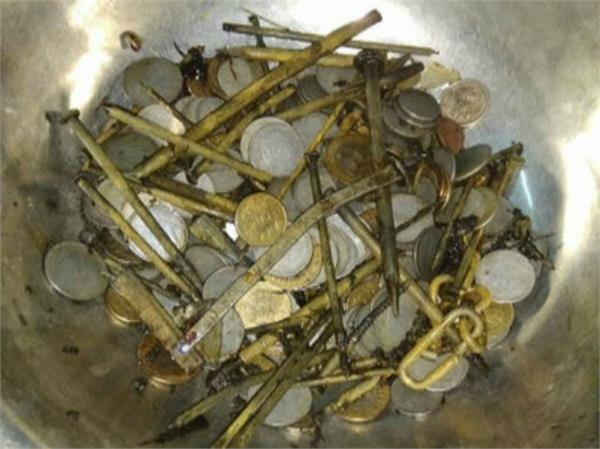 263 coins from the young man stomach