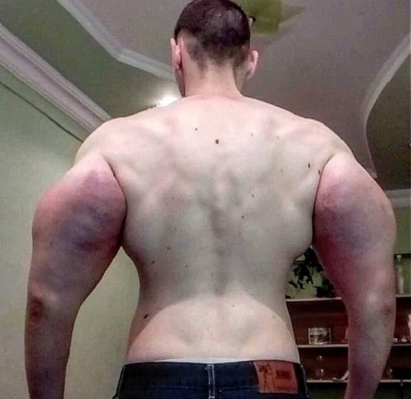 russian wannabe bodybuilder injecting himself with oil