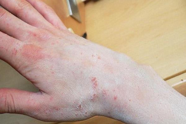 सावधान! सोराइसिस से इस बीमारी का बढ़ सकता है खतरा