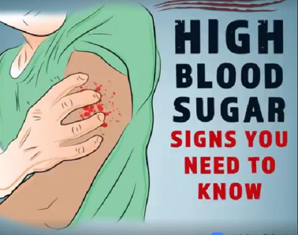 high blood sugar signs you need to know