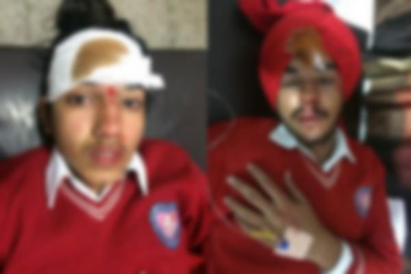 3 student injured in road accident