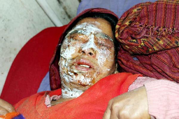 this painful incident happened with woman during making meal