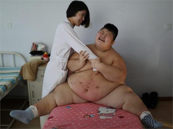 146 kg child taking horrible treatment for weight lose