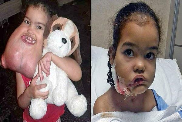 brazilian girl tumour that was like another head attached to her jaw
