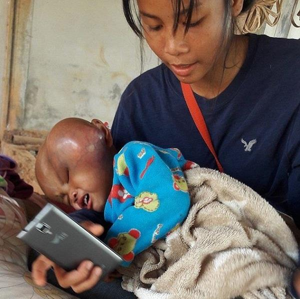 bangkok children suffer with brain cancer