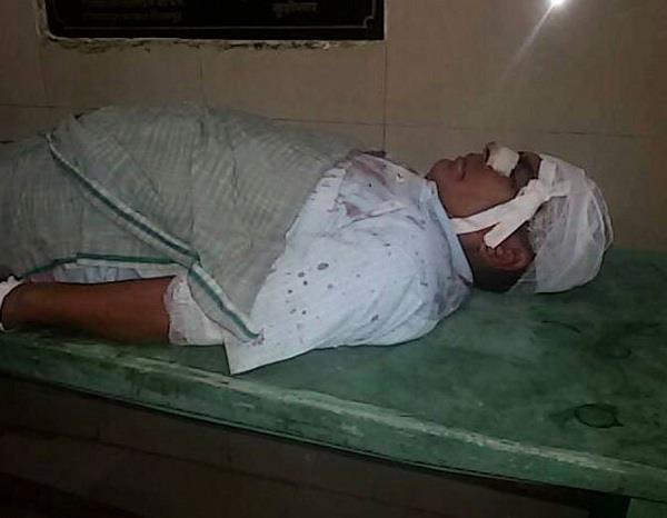 leopard attack kushinagar 2 people injured village in panic