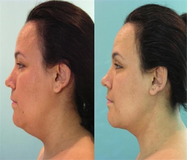 गर्दन की बढ़ी हुई चर्बी को कम करने के आसान टिप्स