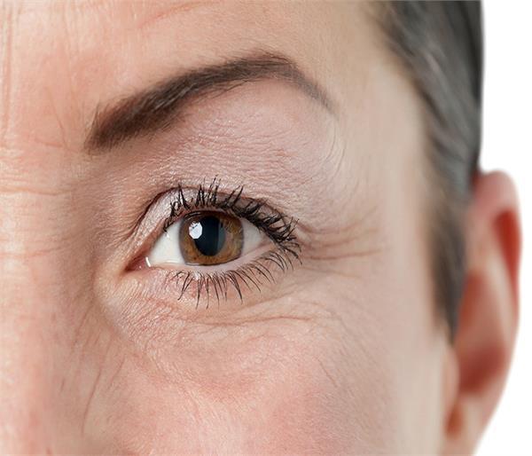 आंखों के आस-पास की झुर्रियों को इन तरीकों से करें दूर