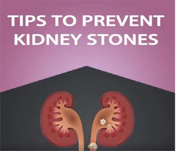 tips to prevent kidney stones