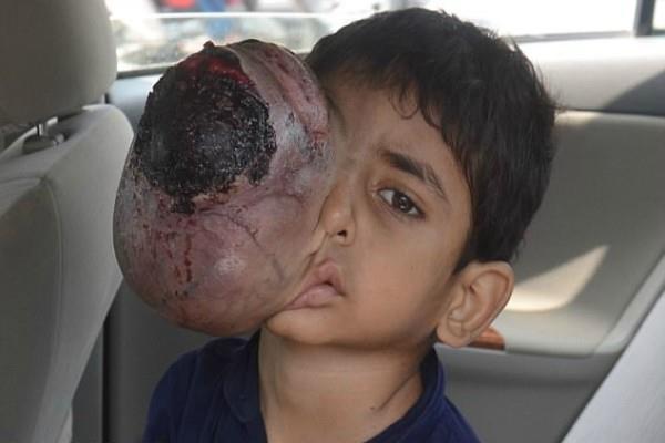 horrifying images pakistani boys eye tumour