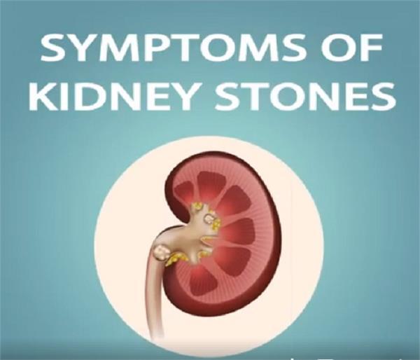 symptoms of kidney stones