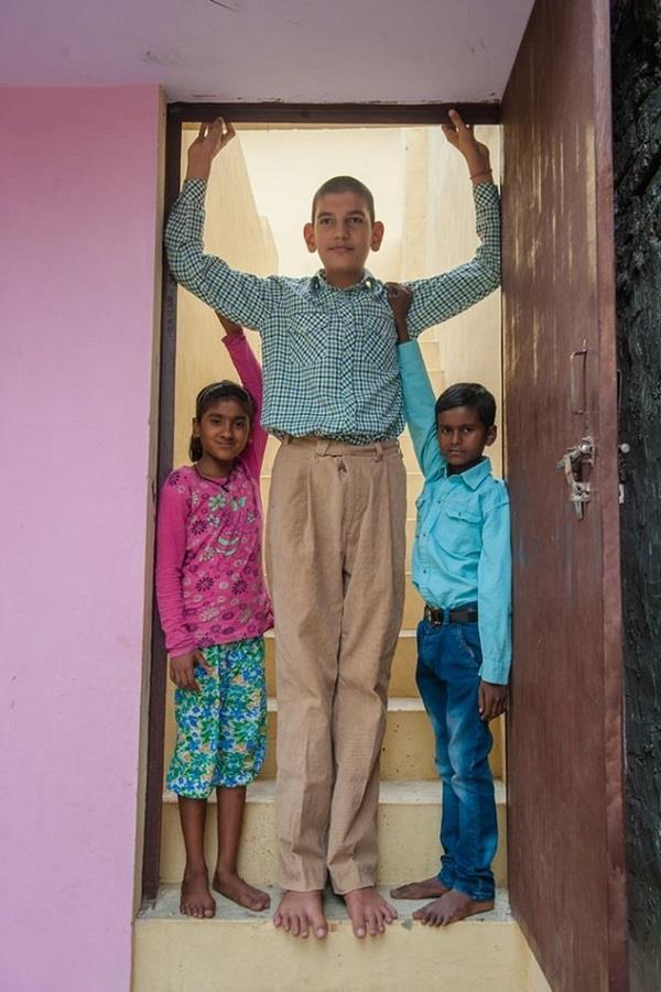 meerut  s 8 year old karan is now the world  s tallest kid
