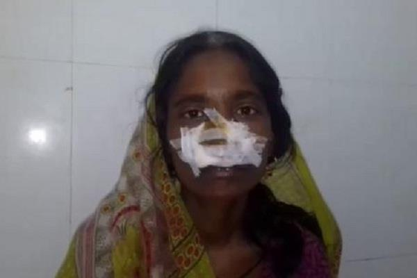 husband hacked wife nose