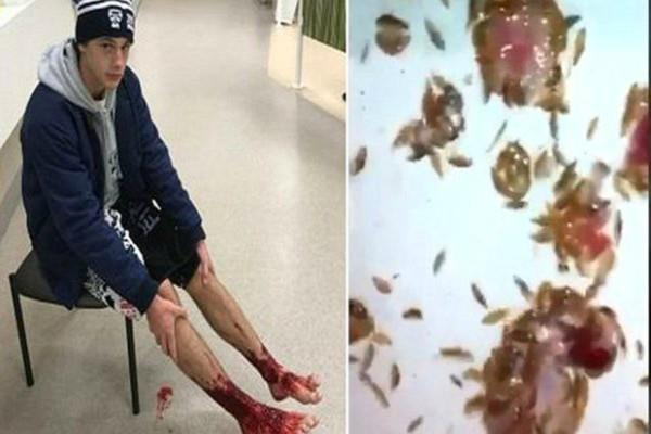 creatures ate legs a young man who went on the beach came to the shocking truth