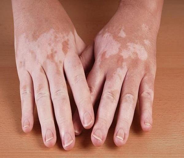 Image result for शरीर में सफेद दाग