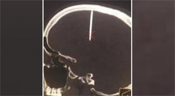 chinese man had a headache and doctors found a nail in his head