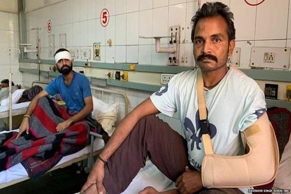 after 10 days of the train accident wounds injured are filling pain still green