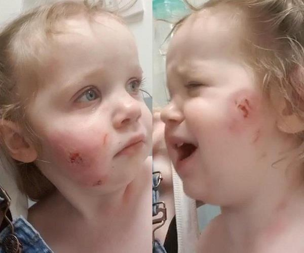 seventeen months old girl bitten 15 times at soft play centre