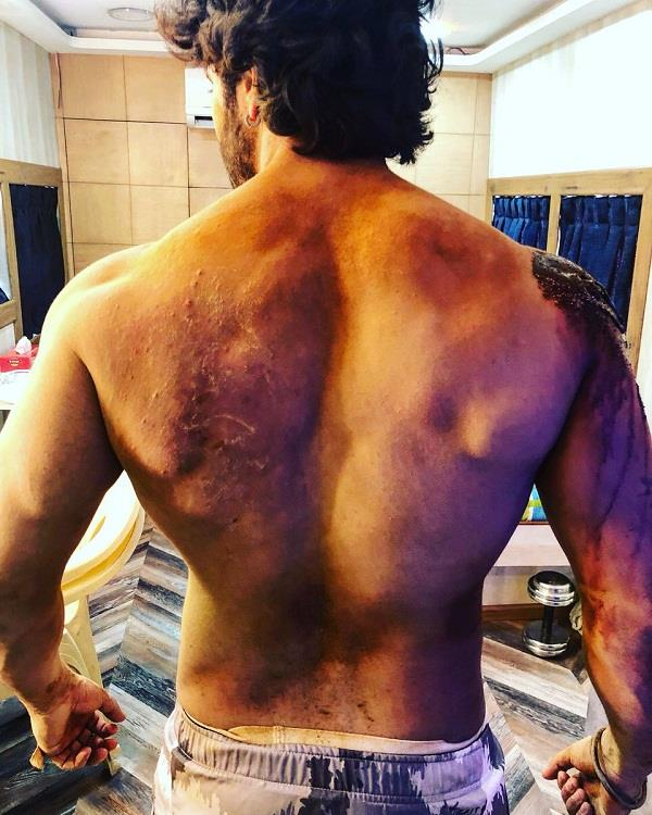 varun dhawan injured during film kalank shooting