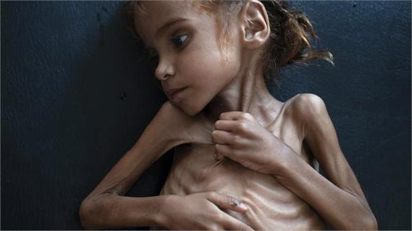 yemen girl whose image drew attention to famine is dead