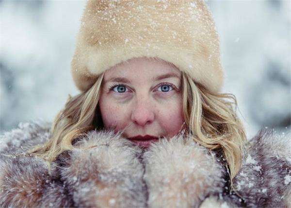 सर्दियों में स्किन पर आती है रेडनेस तो अपनाएं ये 5 टिप्स