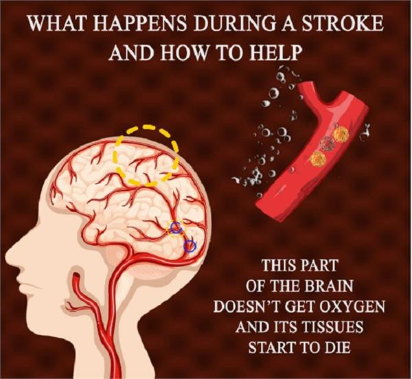 what happens during a stroke and how to help
