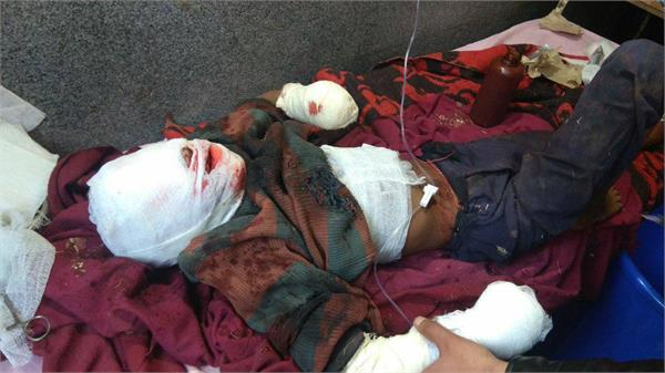 boy injured in poonch