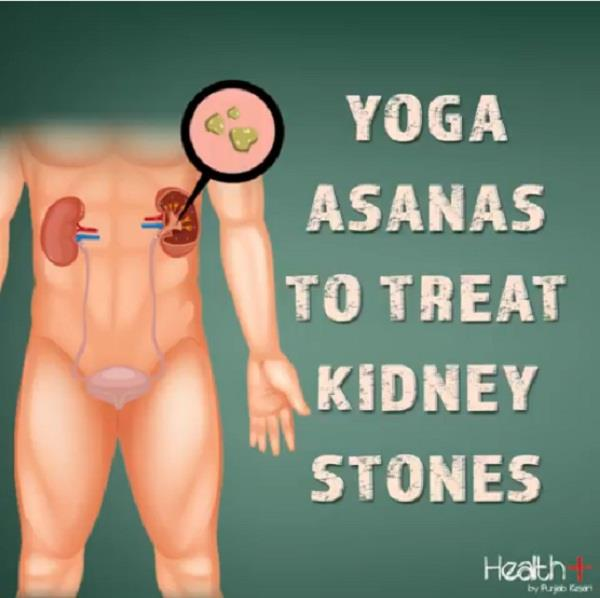 yoga asanas to treat kidney stones