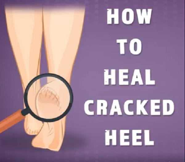 how to heal cracked heel