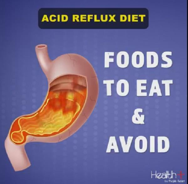 acid reflux diet  foods to eat   avoid