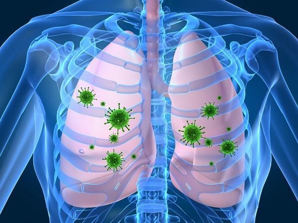 आपकी इन्हीं 4 बड़ी गलतियों से होता है Lung Infection