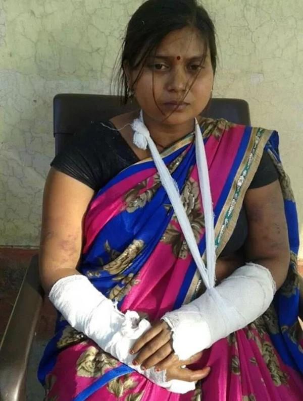 husband breaks both of his wife s hands after giving birth to 3 daughters