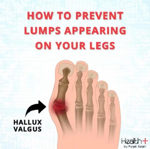 how to prevent lumps appearing on your legs