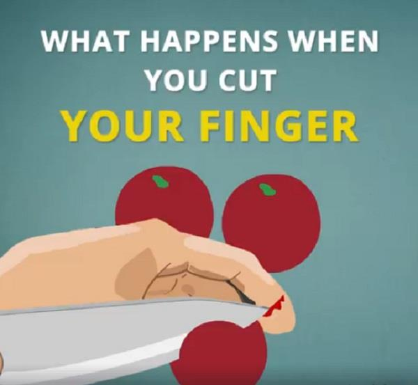 what happens when you cut your finger