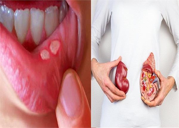 मुंह के छालों से लेकर किडनी की इंफैक्शन तक दूर करता है यह पौधा
