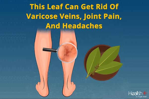 this leaf can get rid of varicose veins joint pain and headaches