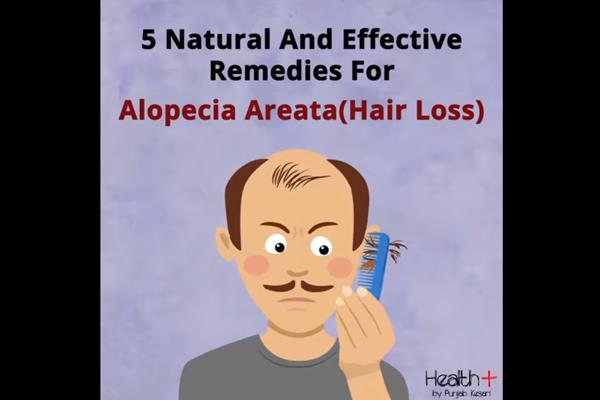 5 natural and effective remedies for alopecia areata hair loss