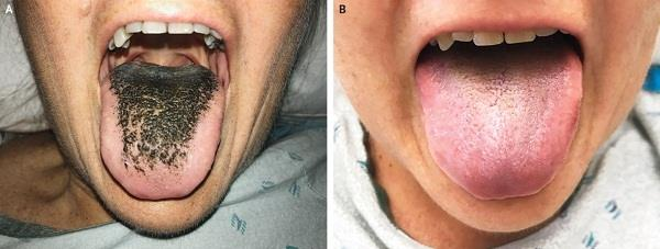 antibiotics gave woman  black hairy tongue