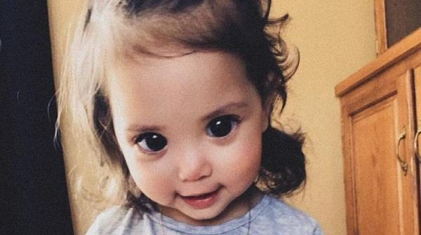 a rare genetic disorder is the reason behind this girl s big beautiful eyes