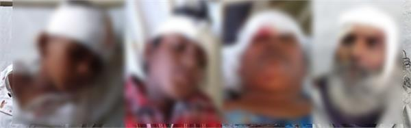 devotees injured in road accident