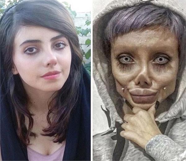 एंजेलिना जोली बनने के चक्कर में लड़की ने बिगाड़ा अपना चेहरा, जेल की भी खानी पड़ेगी हवा