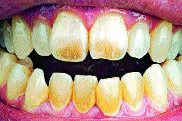 caution drinking fluoride containing water causes increasing dental diseases