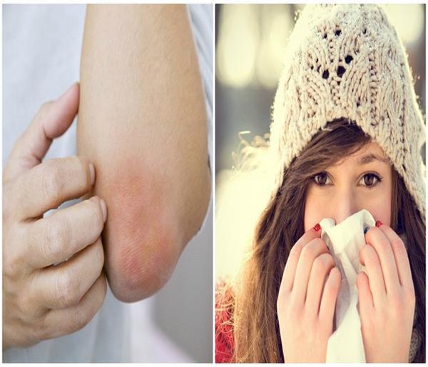 सर्दियों में नहीं होगी एलर्जी की प्रॉबल्म, ध्यान में रखें ये छोटी-छोटी बातें