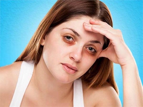 डार्क सर्कल्स की वजह है शरीर में इन 5 पोषक तत्वों की कमी