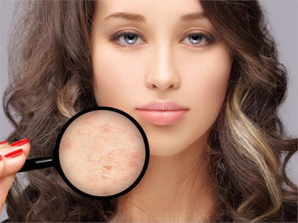 एक या दो नहीं, 6 तरह के होते हैं Pimples, हर किसी का है अलग इलाज