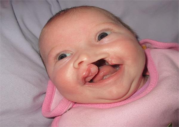 प्रेग्नेंसी में की 1 गलती बिगाड़ सकती है बच्चे का चेहरा