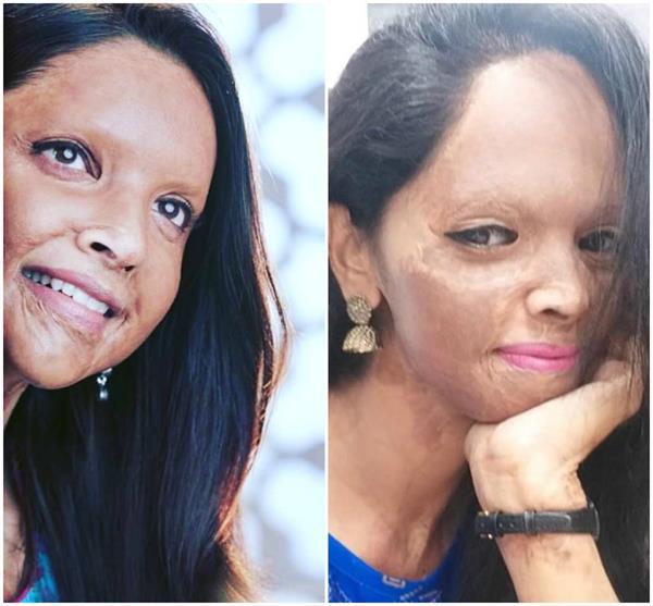 मूवी छपाक में 'एसिड सर्वाइवर' लक्ष्मी का किरदार निभाएंगी दीपिका, जानिए पीड़िता के संघर्ष की कहानी